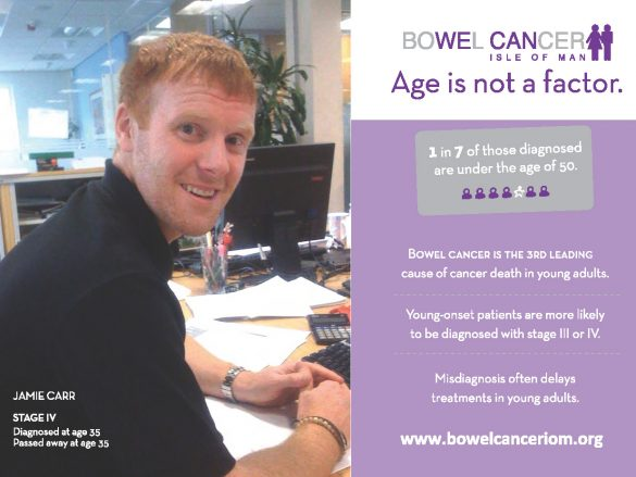 Bowel Cancer – Age is not a factor
